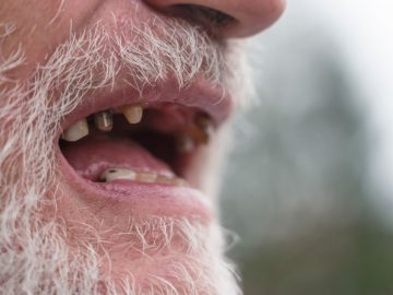 Decayed Tooth